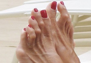photo of hammertoes